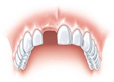 replace the missing tooth with an implant Gdansk