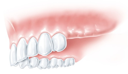missing teeth, dental bridges are good solution in case of large lacks, professional treatment in Gdansk