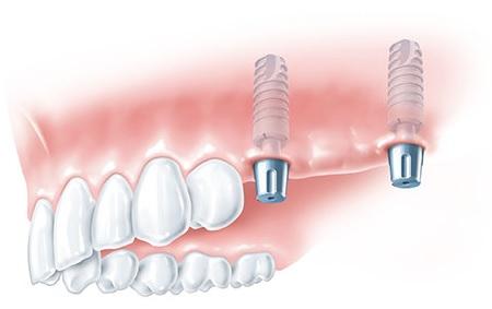 pillars for the dental bridge, Gdansk treatment