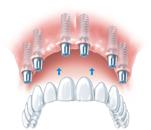 Fixing the dental bridge to the implants. Implants and bridges fully restore teeth. Gdansk as a place where you can heal your teeth.