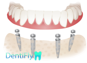 All-on-4 dental implants in dental clinic, Gdansk