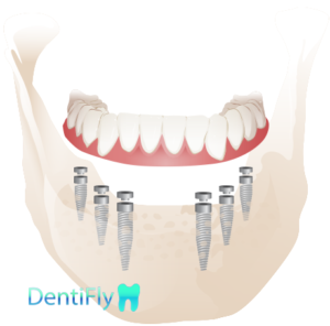 All-on-6 Dental implants, Poland-Gdansk