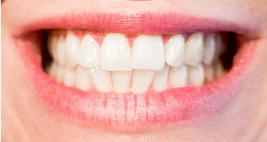 durability after root canal treatment Poland Gdansk