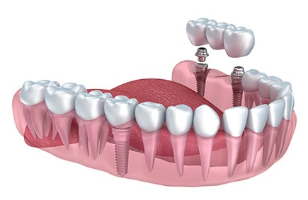 Bridge on implants Gdansk, permanent prosthesis complementary to missing teeth