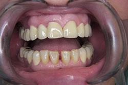 dental prostheses on the snaps, Poland