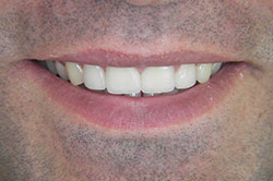 Porcelain veneers can completely change the appearance of the teeth, treatment-Poland Gdansk