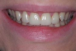 Porcelain veneers Gdansk dental treatment