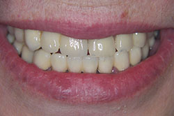 Results of dental treatment gdansk