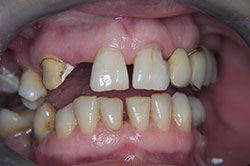 result before dental treatment