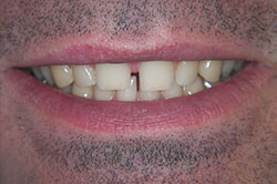 design your smile through porcelain veneers