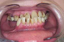 damaged teeth, result before dental treatment