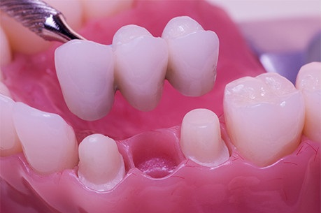 Bridge on natural teeth, professional dental treatments gdansk