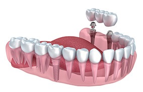 Dental implant can be a pillar for prosthetic restoration such as : dental bridge, Gdansk