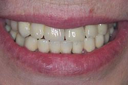 Dental crowns Gdansk professional dentistry