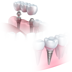 Bridge on implants is a good solution in case of a large shortage, dental treatment Gdansk