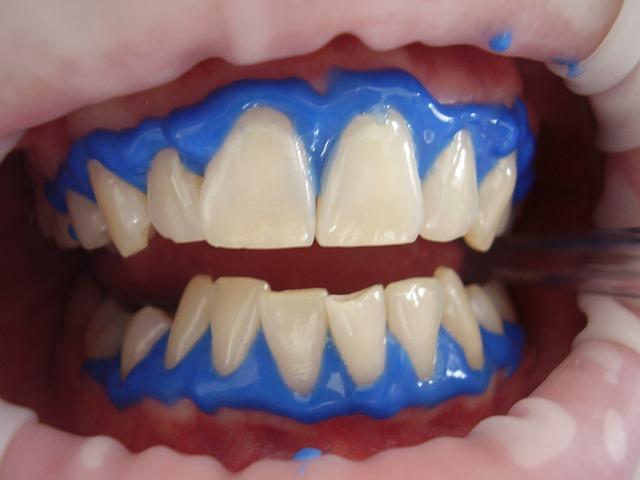 Whitening in dental clinic Gdansk