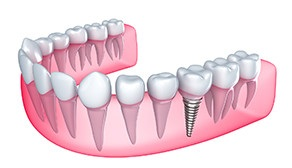 dental implant can be a pillar for dental crown, Gdansk