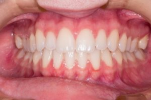 White teeth, Polish dentistry one of the best in Europe, Gdansk treatment
