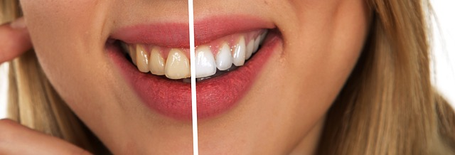 Whitening result, achieve a white teeth in dental clinic Gdansk