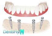 All-on-4 Dental implants in gdansk