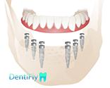 All-on-6 Dental implants in gdansk